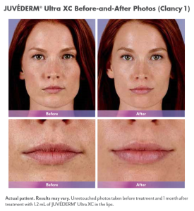 before and after lip injections in scottsdale