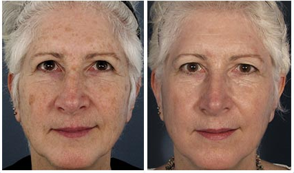 scottsdale fraxel laser before and after