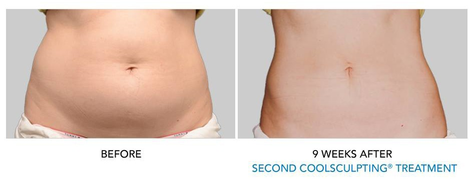 coolsculpting results