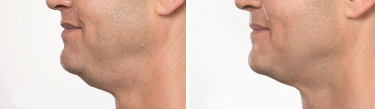 how to get rid of double chin fat - kybella before and after photos
