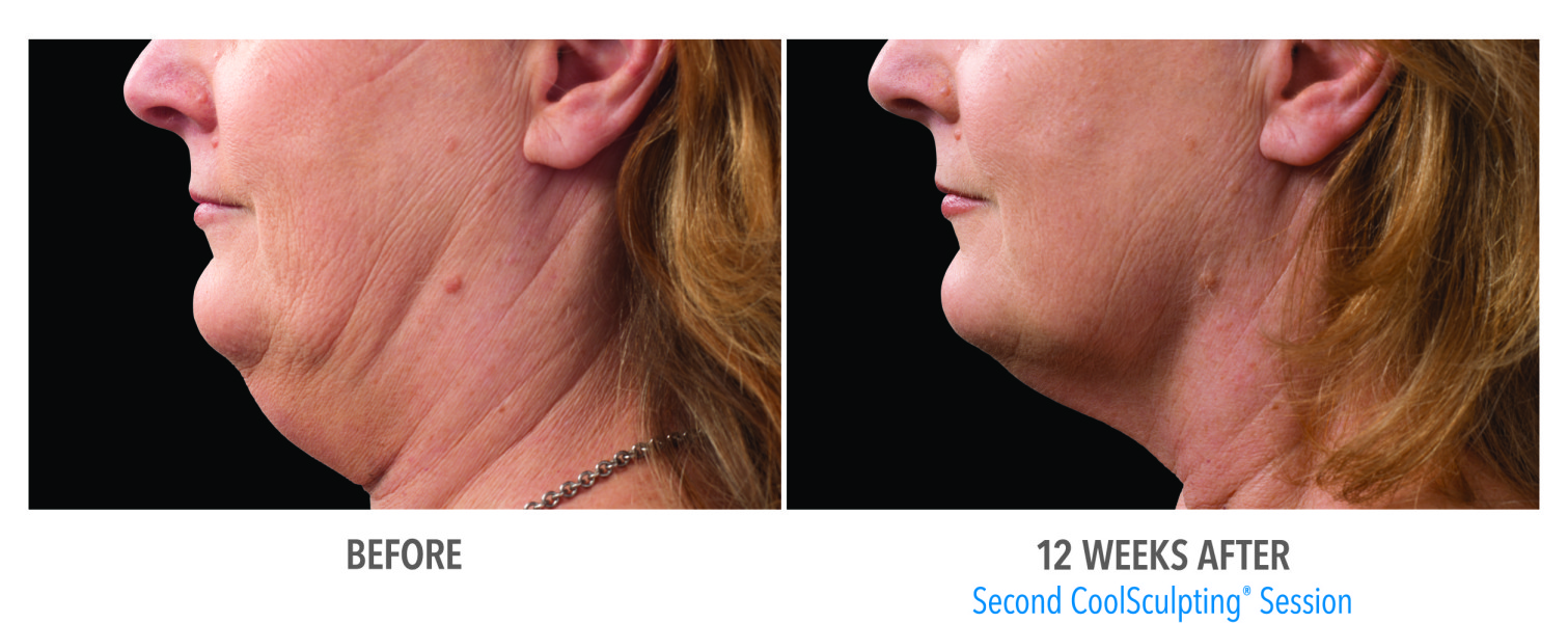 coolsculpting for double chin scottsdale chandler az