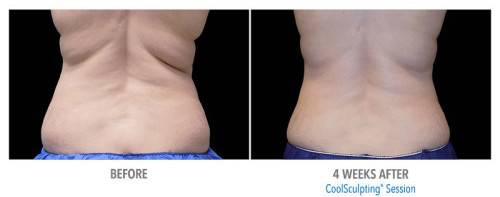 coolsculpting love handles scottsdale