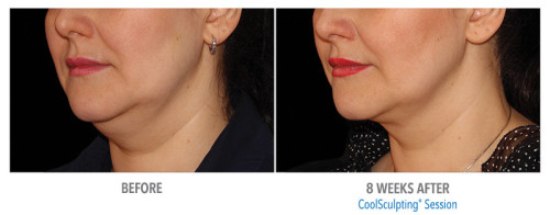 coolsculpting for chin scottsdale