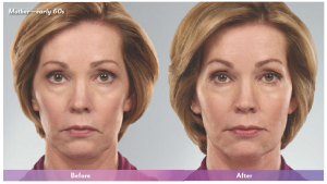 juvederm face lift before and after