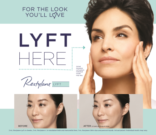restylane dermal fillers scottsdale