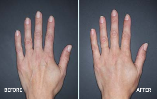 restylane lyft for hands