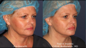 before and after silhouette instalift instant face lift
