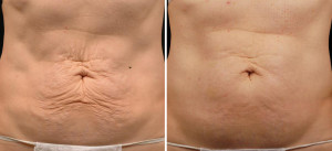 thermage skin tightening after weight loss scottsdale