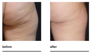 zwave cellulite reduction after weight loss