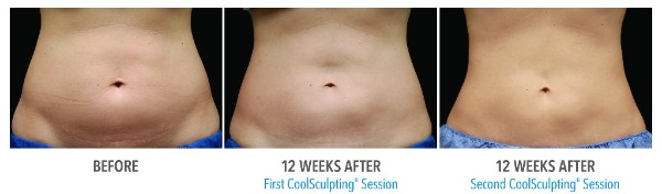 body sculpting with coolsculpting