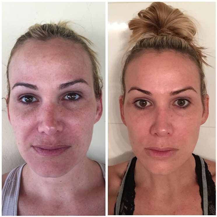 Microneedling with PRP Facial Before and After Photos
