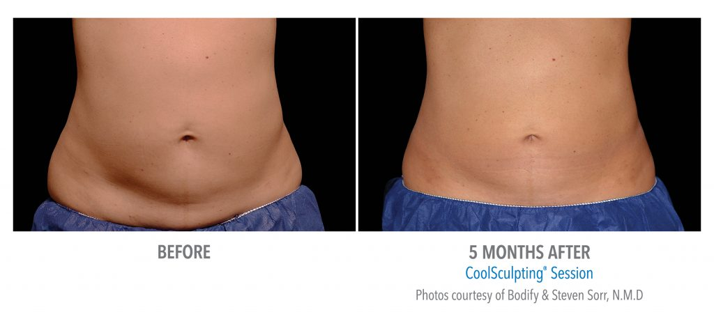 coolsculpting for belly fat before and after