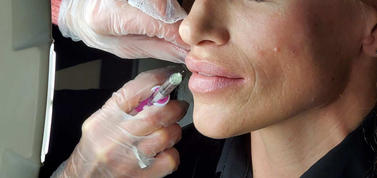 scottsdale lips treatment using injectables