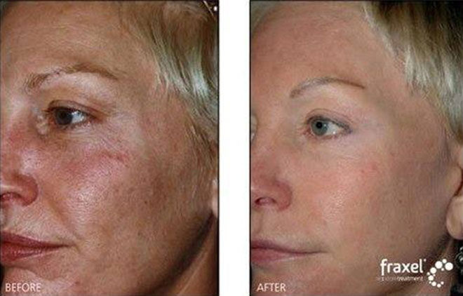 Simply Facial resurfacing before and after agree, rather